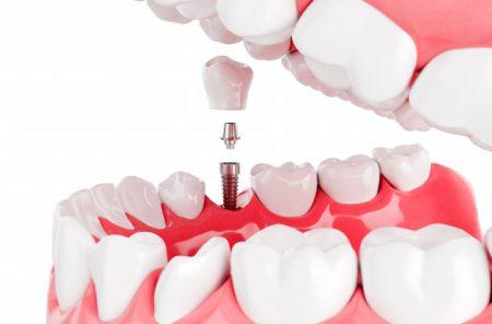Ekstrakcija zob