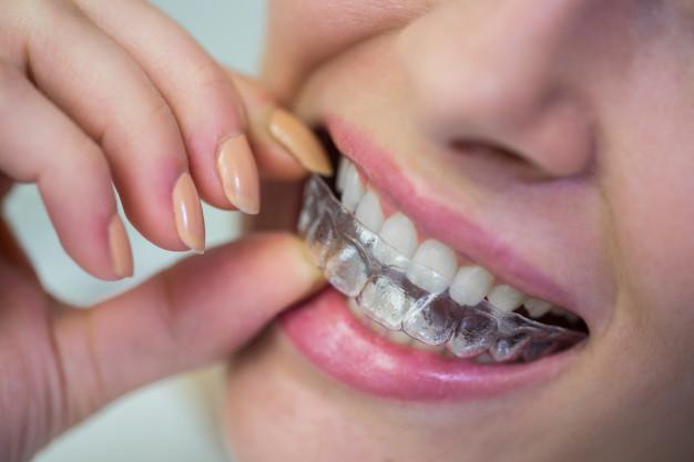 Nevidni zobni aparat Invisalign